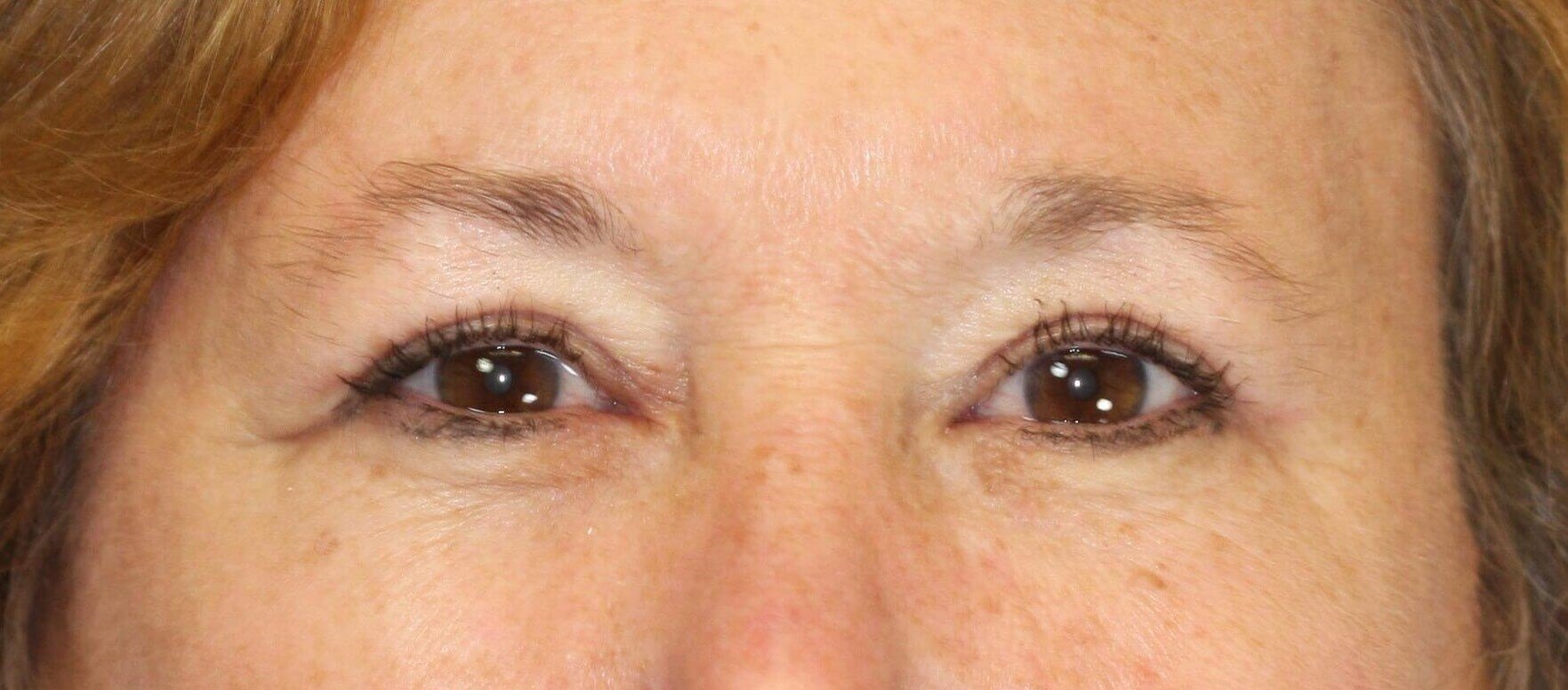 Upper Eyelid Lift 3 months after