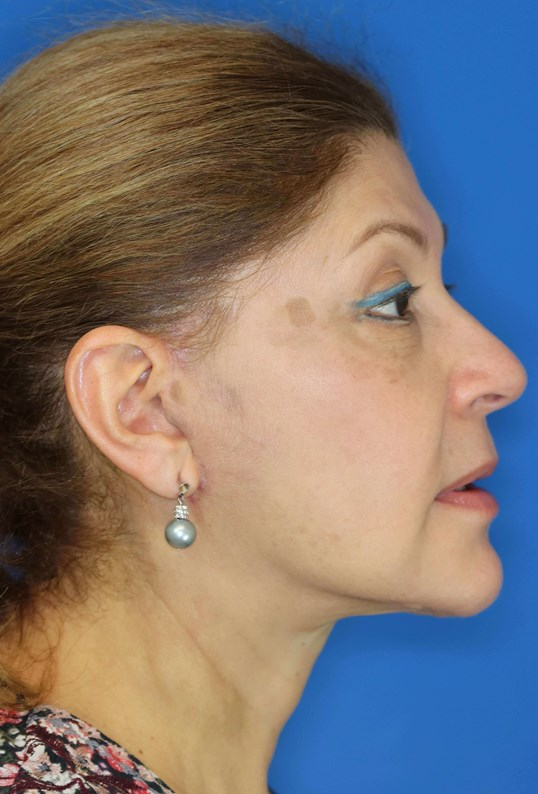 Facelift in Downers Grove, IL 3 months after