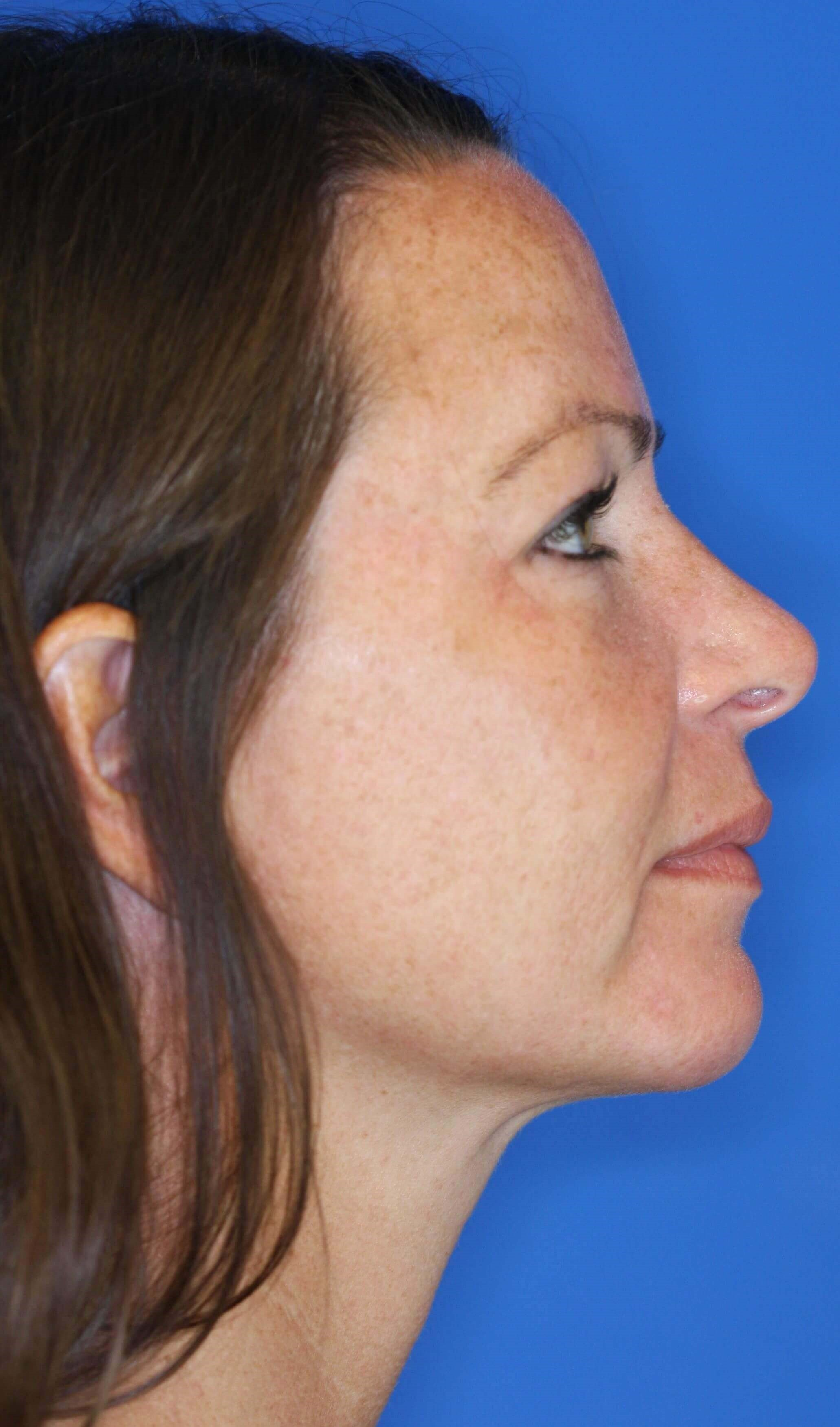 laser resurfacing of the face 10 months postop