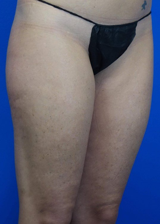 Medial Thigh Lift Before