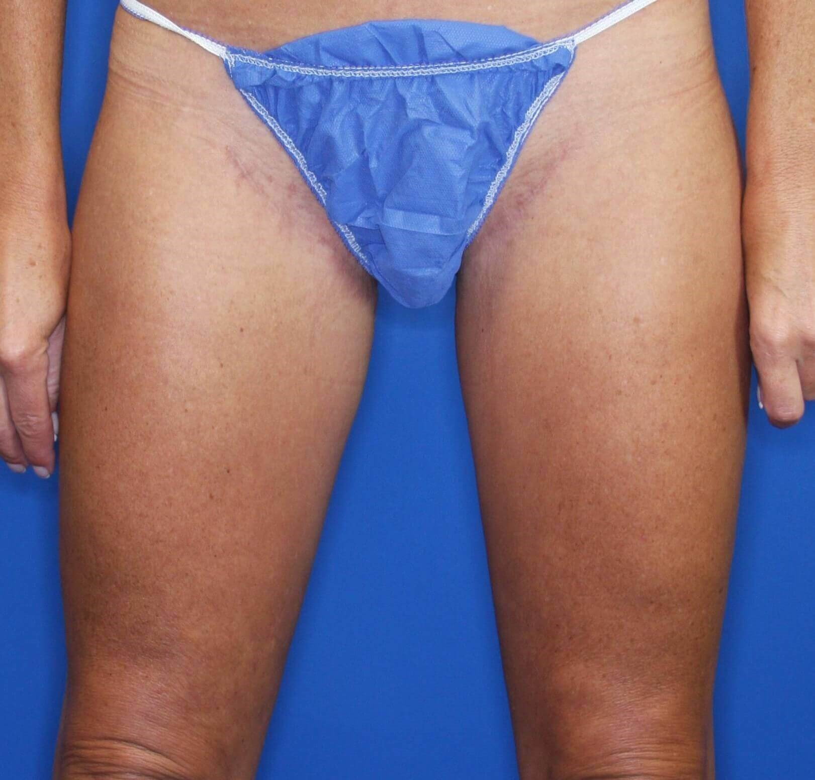 Medial Thigh Lift 10 months postop
