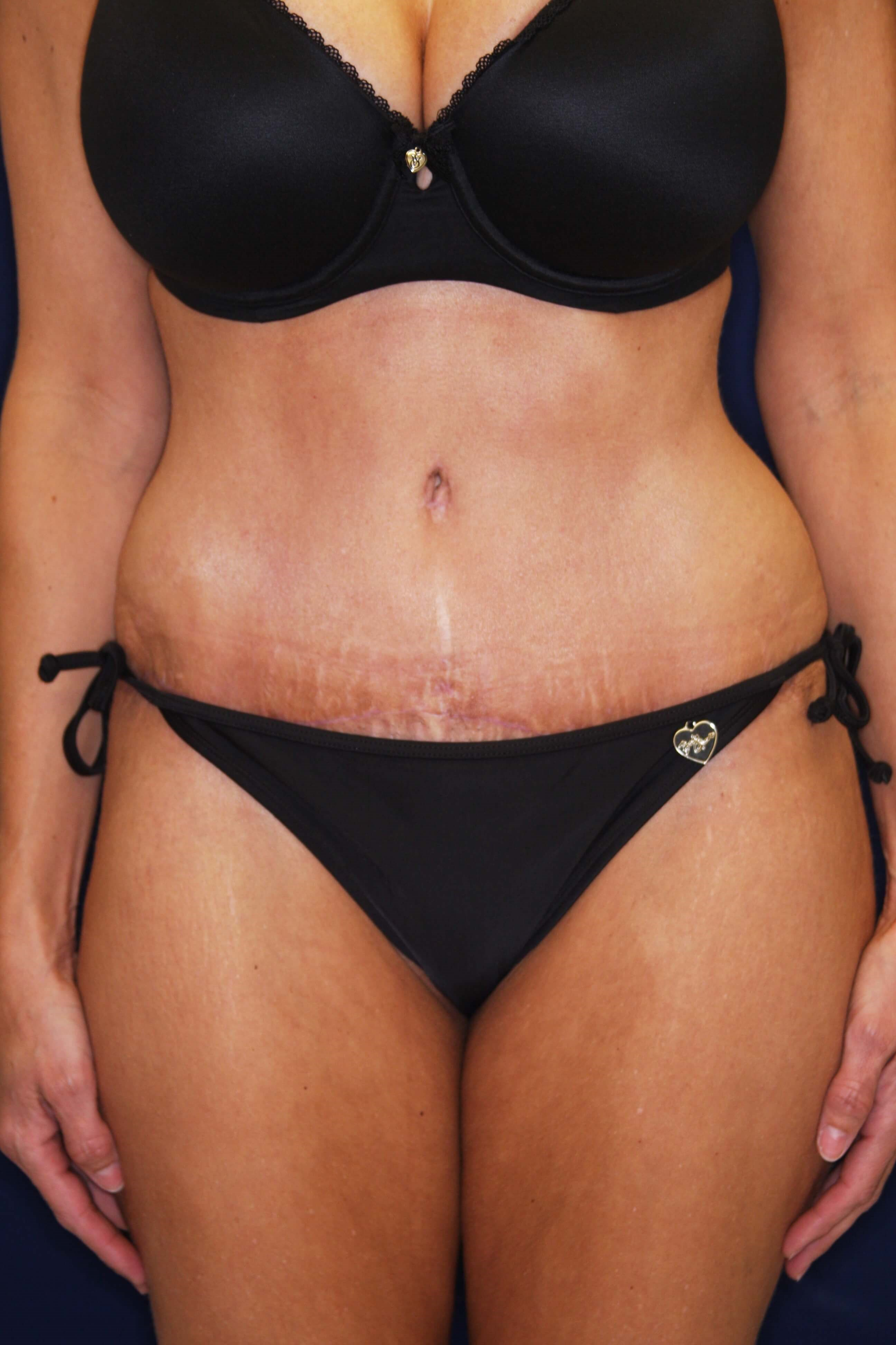 Tummy Tuck, Downers Grove, IL 1 year postop