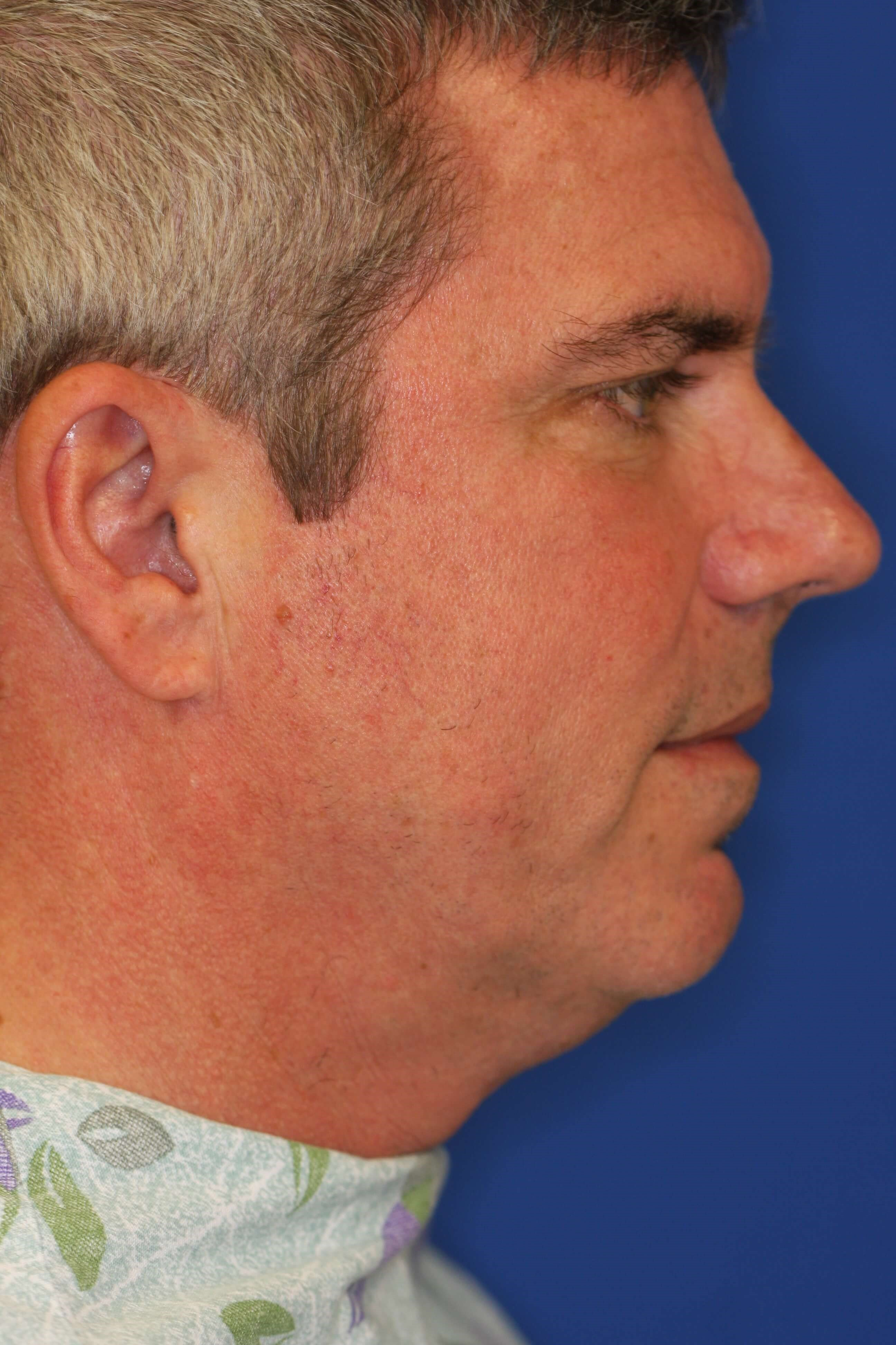 50 Year Old Male Who Wanted His Neck Fullness And Lack Of