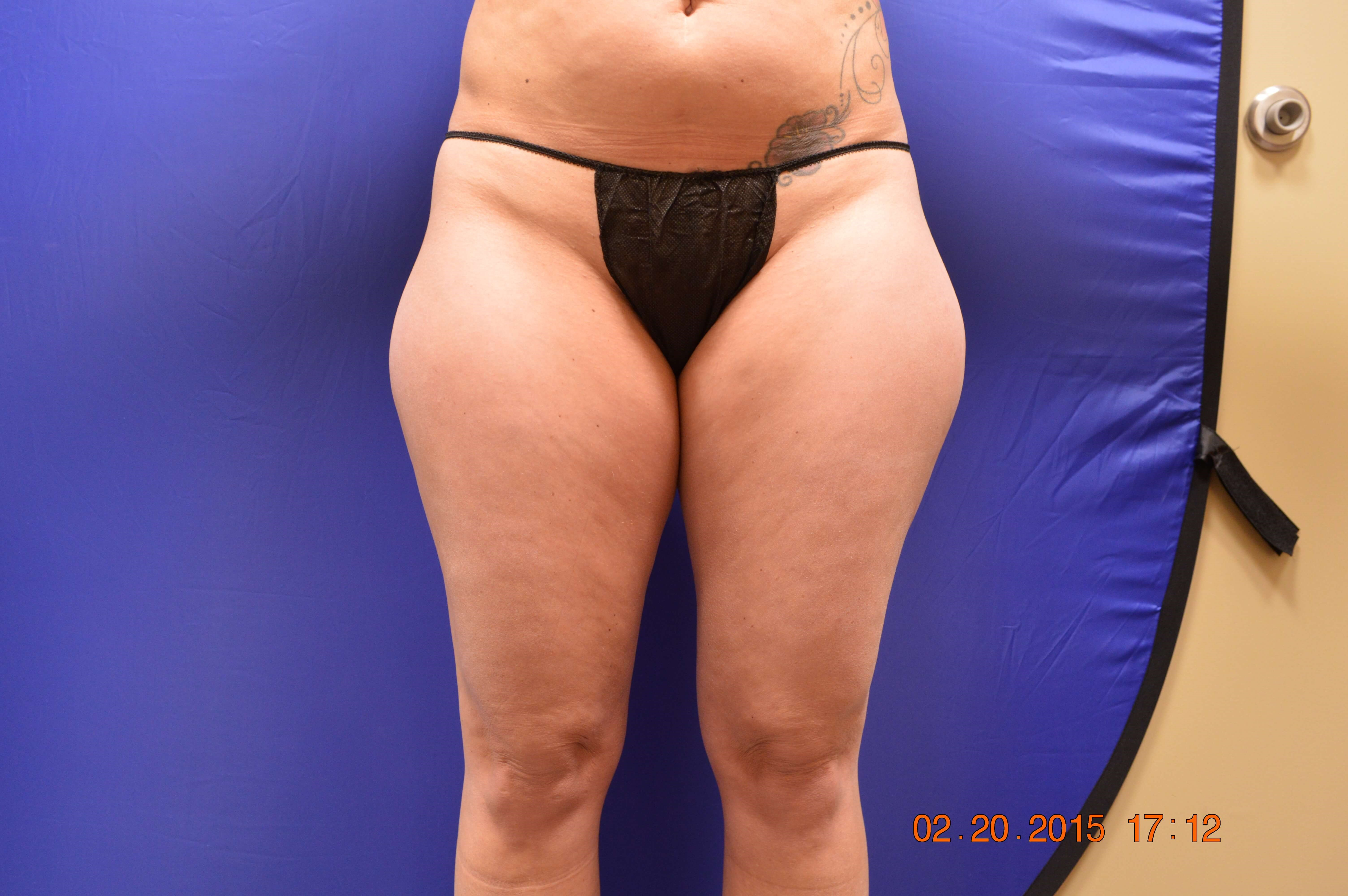 Lipo Outer Thighs 2 months Before